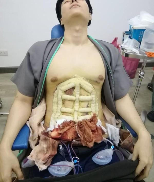 Trào lưu tạc bụng 6 múi đau đớn đang gây sốt tại Thái Lan-2