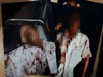 Chồng bị đánh 'thừa sống thiếu chết', nghi do vợ đi vay nặng lãi tiền tỷ không trả