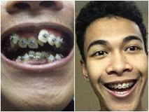 Ngỡ ngàng trước sự lột xác vi diệu nhờ niềng răng, dung mạo thay đổi 180 độ