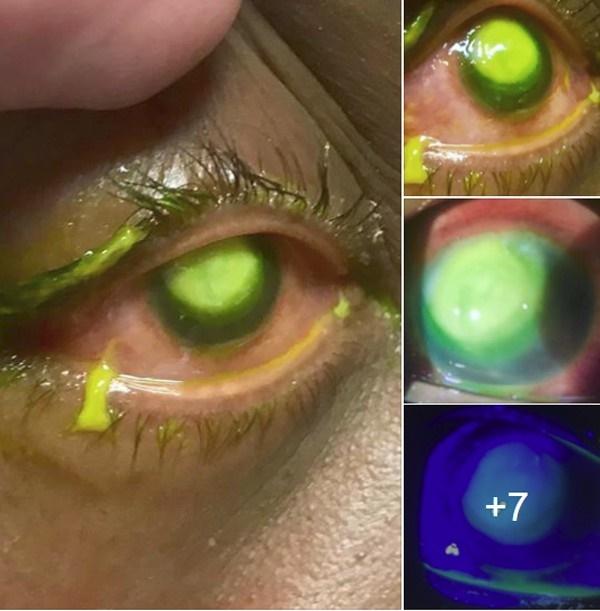 Những bức ảnh đáng sợ này chắc chắn sẽ khiến bạn nghĩ lại nếu trót lỡ đeo lens khi đi ngủ-1