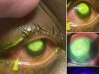 Những bức ảnh đáng sợ này chắc chắn sẽ khiến bạn nghĩ lại nếu trót lỡ đeo lens khi đi ngủ
