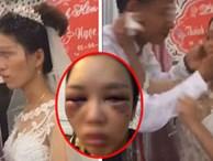 Sự thật bức ảnh cô dâu bị đánh thâm tím mặt mày vì tỏ thái độ 'lồi lõm', không cho chồng hôn ngay trong đám cưới