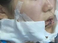 Ép hôn không được, gã trai cầm dao rạch mặt thiếu nữ khiến cô phải khâu 70 mũi