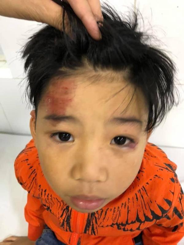 Hai con nhỏ của siêu mẫu Hạ Vy bị xe điên tông chấn thương não rồi bỏ chạy-1