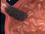 Dấu hiệu ung thư vòm họng chẳng mấy người để ý-3