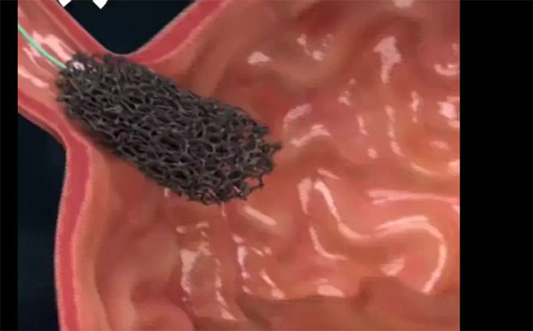 Bệnh nhân ở Hà Nội 16 tuổi đã ung thư vòm họng: Nghi ngờ thủ phạm là thứ người Việt rất mê-1