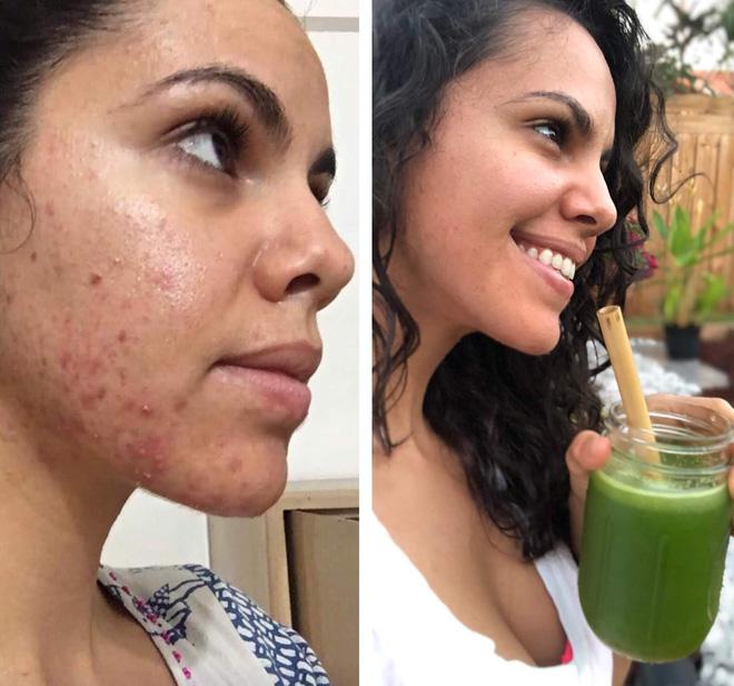 Ngắm kết quả sau khi uống nước ép cần tây của các cô gái trên thế giới: làn da thay đổi nhiều đến mức khó tin-3