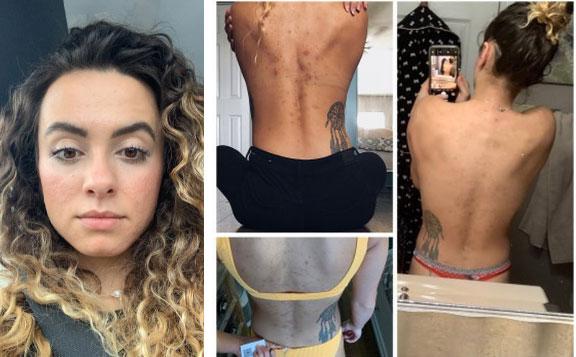 Ngắm kết quả sau khi uống nước ép cần tây của các cô gái trên thế giới: làn da thay đổi nhiều đến mức khó tin-9