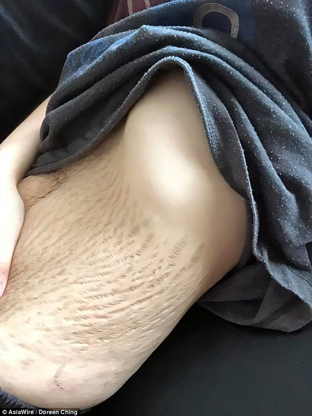 Mẹ trẻ gây ám ảnh với bộ ngực chảy xệ, da bụng rạn nứt tung tóe sau sinh-6