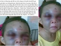 Thực hư thông tin bé trai ở Thanh Hóa bị dì ghẻ đánh đập thâm tím mặt vì… nhớ mẹ