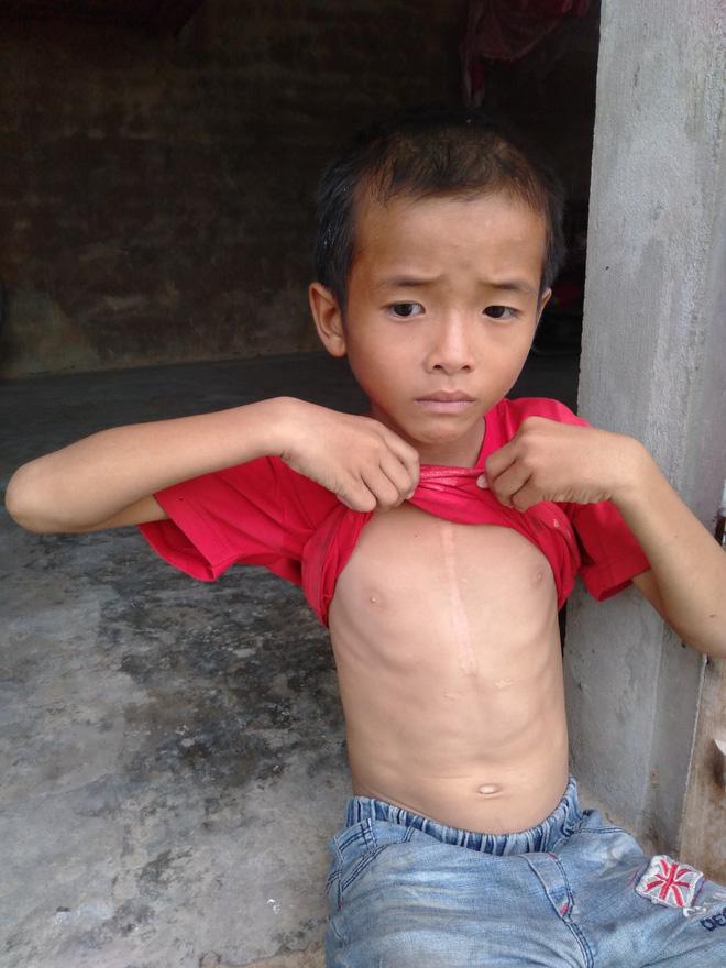 """Bé trai 9 tuổi không có bố, mắc bệnh tim đau đớn nhìn mẹ cận kề cái chết: Cháu sẽ sống sao nếu không còn mẹ?""""-5"""