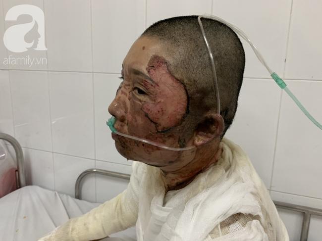 Bố dùng xăng đốt khiến mẹ biến dạng khuôn mặt, con gái 8 tuổi khóc ngất: Mẹ có xấu nhưng con vẫn nhận ra mẹ mà-6