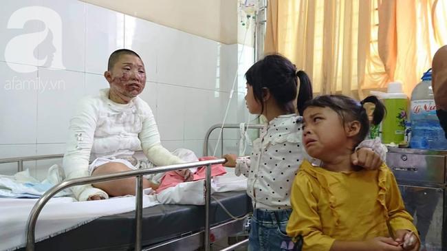 Bố dùng xăng đốt khiến mẹ biến dạng khuôn mặt, con gái 8 tuổi khóc ngất: Mẹ có xấu nhưng con vẫn nhận ra mẹ mà-12