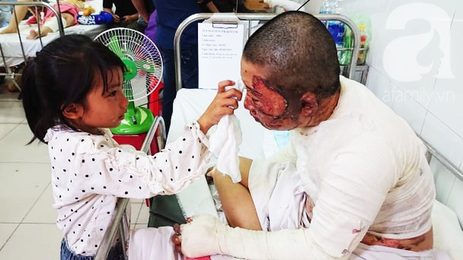 Bố dùng xăng đốt khiến mẹ biến dạng khuôn mặt, con gái 8 tuổi khóc ngất: Mẹ có xấu nhưng con vẫn nhận ra mẹ mà-13