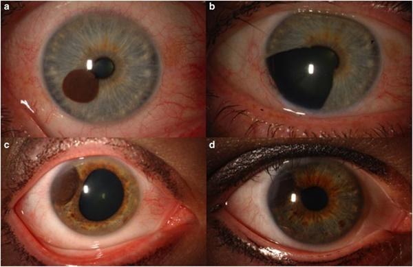Hóa ra tròng mắt cũng có thể bị ung thư, và những gì xảy đến sau đó sẽ khiến bạn phải giật mình-3