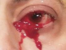 Hoảng sợ tột độ khi bất ngờ khóc ra máu: Câu chuyện kinh hoàng của người đàn ông hoàn toàn khỏe mạnh