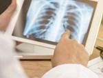 Chuyên gia tiết lộ 10 báo động đỏ trên cơ thể chứng tỏ ung thư đang đến gần-5