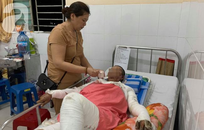 Phẫn nộ: Chồng nhậu say rồi về gây sự, mua xăng đốt vợ khiến nạn nhân bị bỏng nặng-5