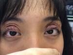 Cắt mí giúp mắt đẹp hơn nhưng làm không đúng bước này thì dễ rơi vào cảnh mắt xếch, mắt trợn ngược-3