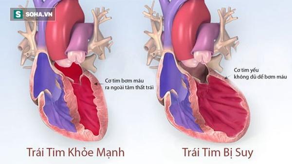 4 dấu hiệu cảnh báo tim của bạn đã gặp nguy hiểm: Hãy nhanh đi khám để tránh rủi ro-1