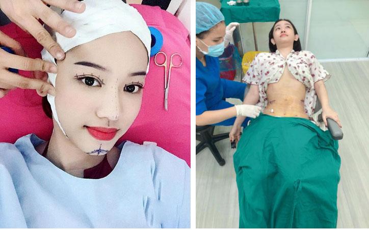 Thúy Vi không tiếc tay chi tiền tỷ phẫu thuật thẩm mỹ, nhưng lại nhận mình là hot girl sống khổ nhất Việt Nam-3