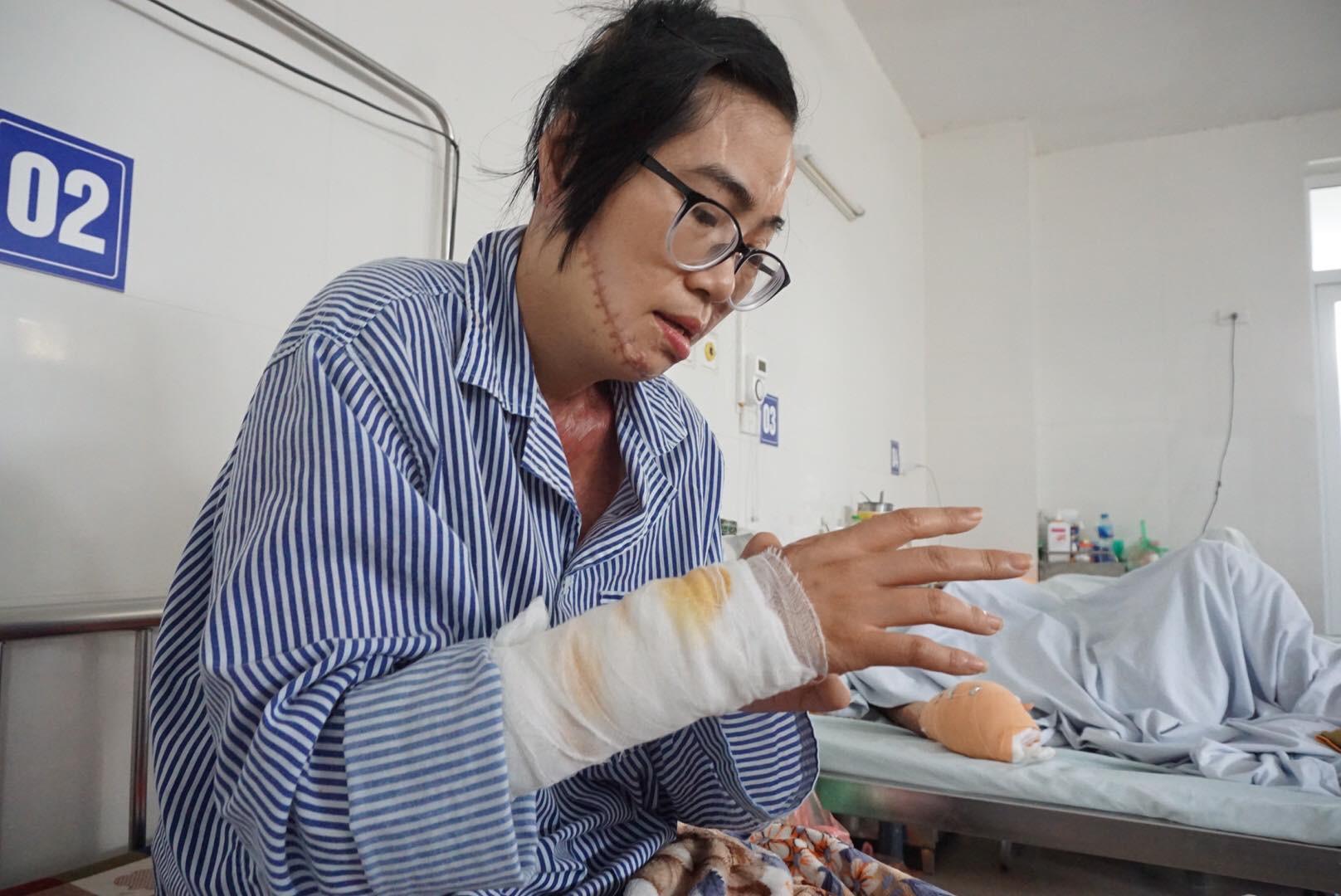 Cô giáo bị chồng tạt axit biến dạng khuôn mặt và tâm sự chua xót của người cha sau 21 lần phẫu thuật của con gái-3