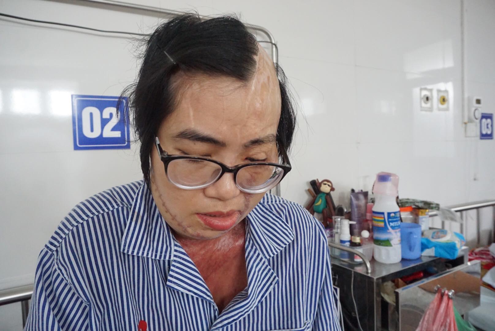 Cô giáo bị chồng tạt axit biến dạng khuôn mặt và tâm sự chua xót của người cha sau 21 lần phẫu thuật của con gái-4