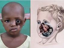 Noma - Căn bệnh kinh hoàng nhất thế giới, chỉ có 15% trẻ em sống sót sau cơn đau cấp tính