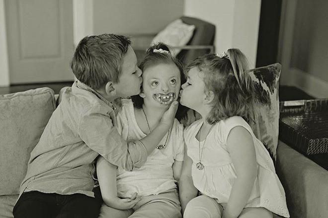 Bé gái từng bị miệt thị công khai vì diện mạo khiếm khuyết gây xúc động MXH, trút hơi thở cuối cùng ở tuổi lên 10-2
