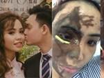 Đây là lý do khiến cô gái bị chồng sắp cưới nổi cơn ghen tuông kinh hoàng rồi tạt axit?-6