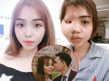 Đây là lý do khiến cô gái bị chồng sắp cưới nổi cơn ghen tuông kinh hoàng rồi tạt axit?