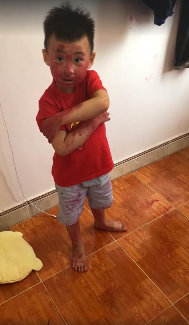 Sự im ắng khác thường trong phòng và 2 cậu con trai mặt mũi bê bết vết đỏ khiến mẹ trẻ đứng hình, cười trong nước mắt-2