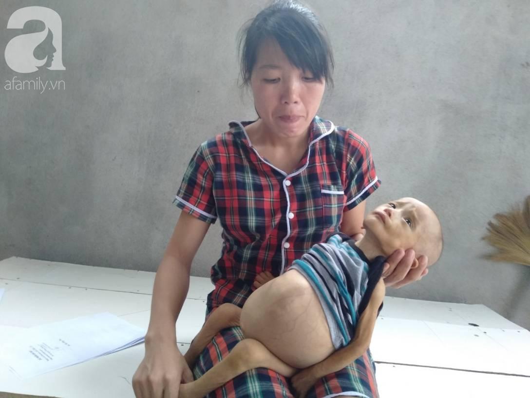 Sự sống mong manh của bé trai 1 tuổi, chỉ nặng 6kg, bụng phình to như cái trống mà mẹ nghèo không tiền chữa trị-2