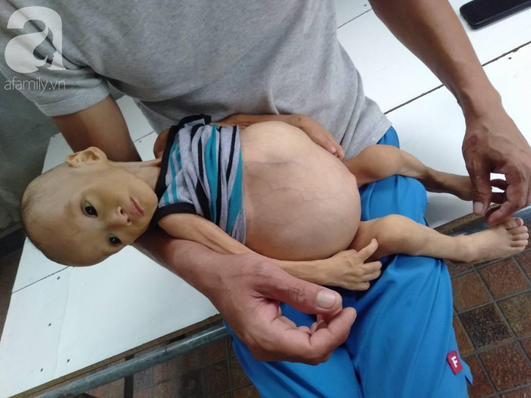 Sự sống mong manh của bé trai 1 tuổi, chỉ nặng 6kg, bụng phình to như cái trống mà mẹ nghèo không tiền chữa trị-8