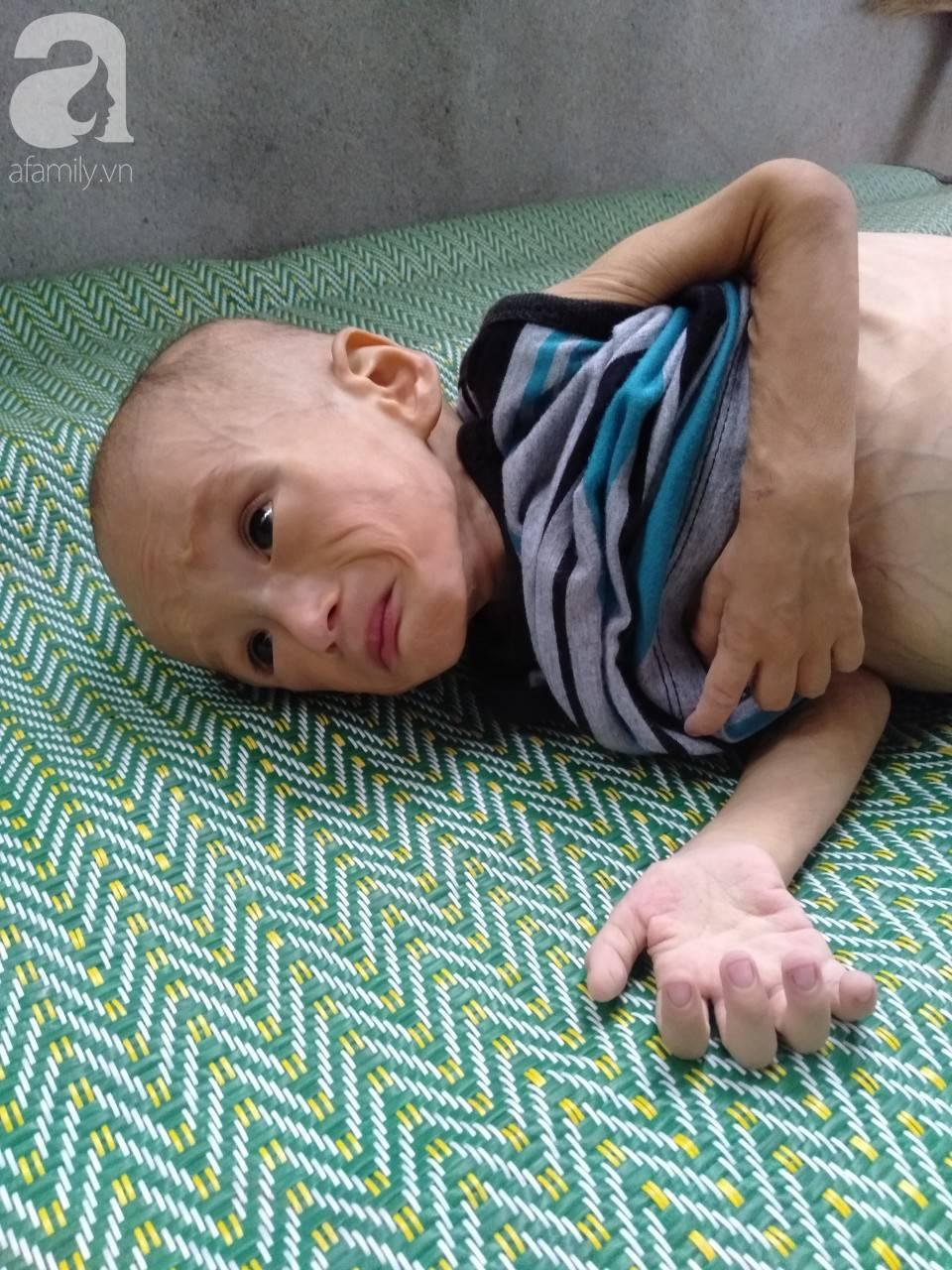 Sự sống mong manh của bé trai 1 tuổi, chỉ nặng 6kg, bụng phình to như cái trống mà mẹ nghèo không tiền chữa trị-5