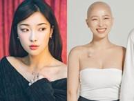 Nhật ký ung thư đầy lạc quan của Beauty Blogger Hàn Quốc: Nụ cười luôn thường trực trên môi, 'rồi tóc sẽ mọc lại thôi'