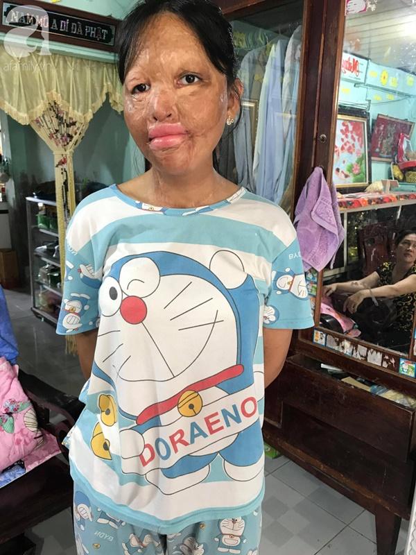 Bé gái biến dạng khuôn mặt, mất một bên tai và ước mơ nhói lòng: Em muốn làm họa sĩ để vẽ mình đẹp hơn-2