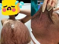 Hình ảnh chiếc bụng của mẹ trước và sau sinh 'gây bão' nhất ngày 1/6: Để có những đứa con chào đời, cái giá của mẹ là đây