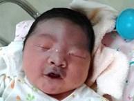 Mẹ bầu sinh con ra mặt mũi bầm tím do thói quen ăn uống cực có hại này trong thai kỳ