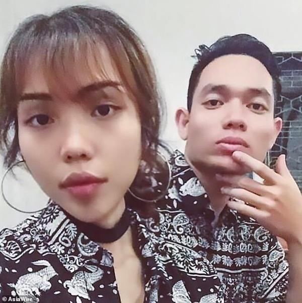 Dân mạng nước ngoài bày tỏ sự thương cảm với cô gái Việt Nam bị chồng sắp cưới tạt axit đến biến dạng khuôn mặt-1