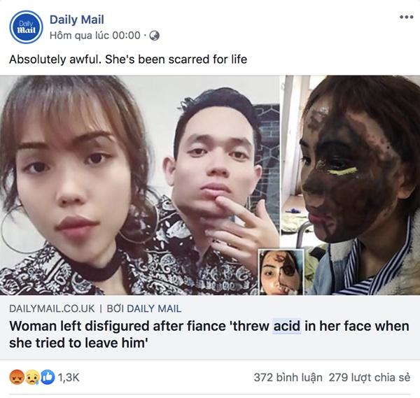 Dân mạng nước ngoài bày tỏ sự thương cảm với cô gái Việt Nam bị chồng sắp cưới tạt axit đến biến dạng khuôn mặt-3