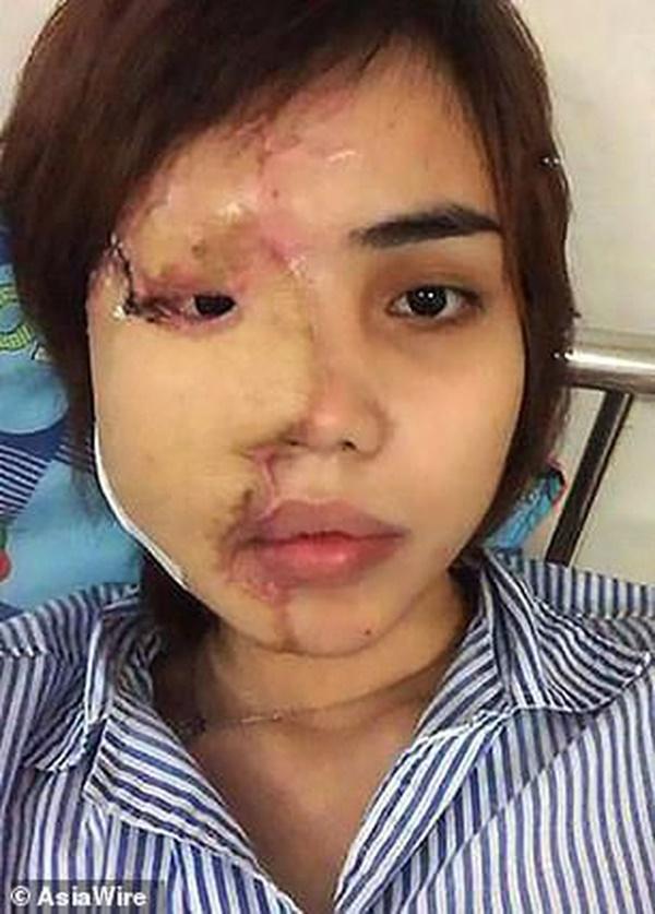 Dân mạng nước ngoài bày tỏ sự thương cảm với cô gái Việt Nam bị chồng sắp cưới tạt axit đến biến dạng khuôn mặt-6