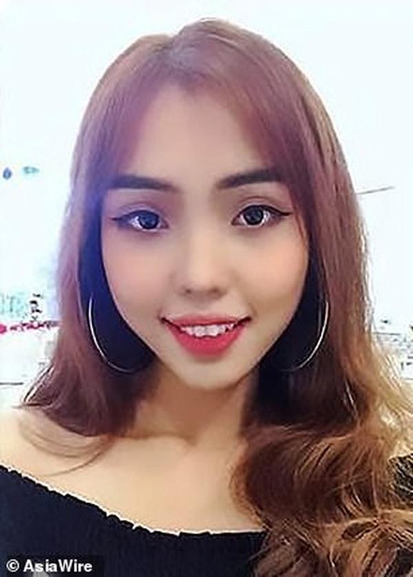 Dân mạng nước ngoài bày tỏ sự thương cảm với cô gái Việt Nam bị chồng sắp cưới tạt axit đến biến dạng khuôn mặt-5