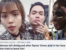 Dân mạng nước ngoài bày tỏ sự thương cảm với cô gái Việt Nam bị chồng sắp cưới tạt axit đến biến dạng khuôn mặt
