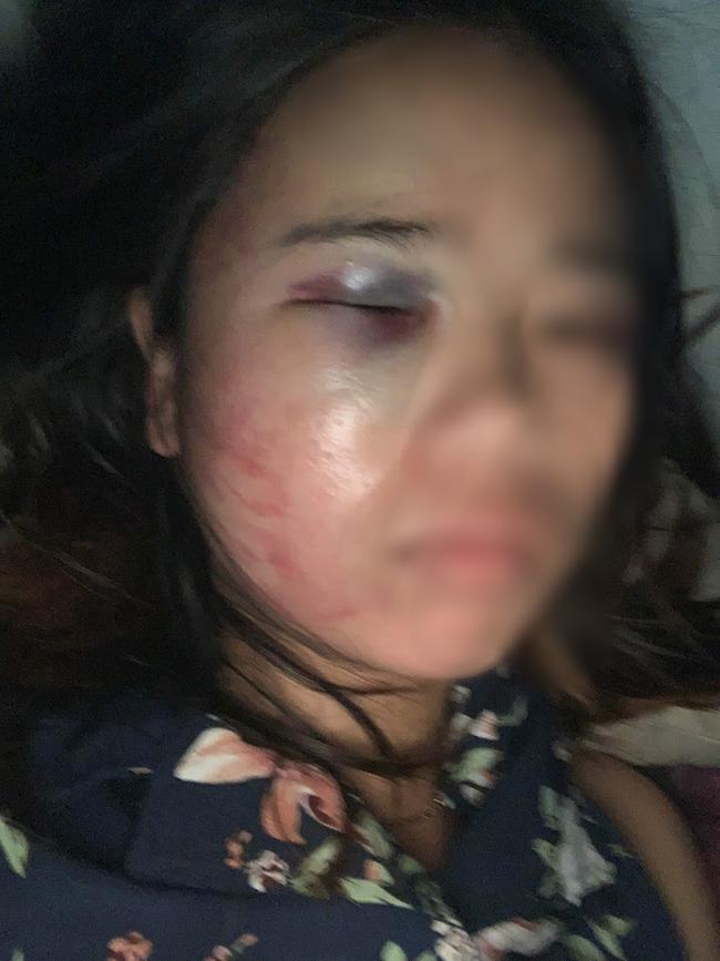 Xót xa người vợ mang bầu 7 tháng vẫn bị chồng đánh bầm dập, đau lòng hơn khi bố ruột vừa mới qua đời-3