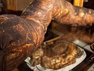 Người đàn ông chết khi đang đi vệ sinh, ruột được giữ ở bảo tàng mãi mãi