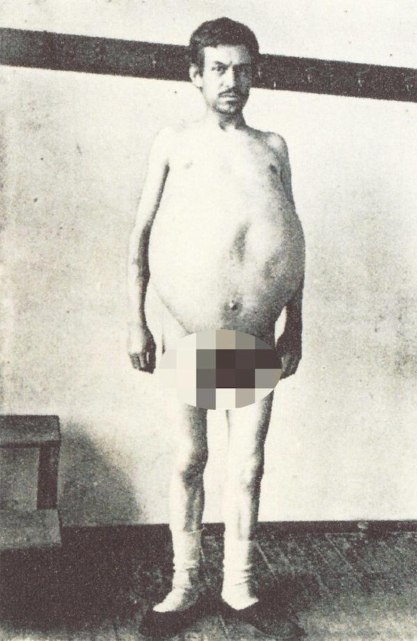 Người đàn ông chết khi đang đi vệ sinh, ruột được giữ ở bảo tàng mãi mãi-2
