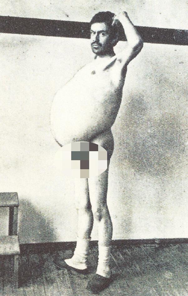 Người đàn ông chết khi đang đi vệ sinh, ruột được giữ ở bảo tàng mãi mãi-1