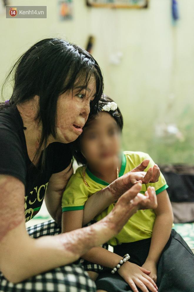 Cô gái trẻ bị chồng tưới xăng thiêu sống và lá thư muộn màng từ trại giam: Gần 3 năm anh chưa một lần dám viết thư cho em và hai con...-9