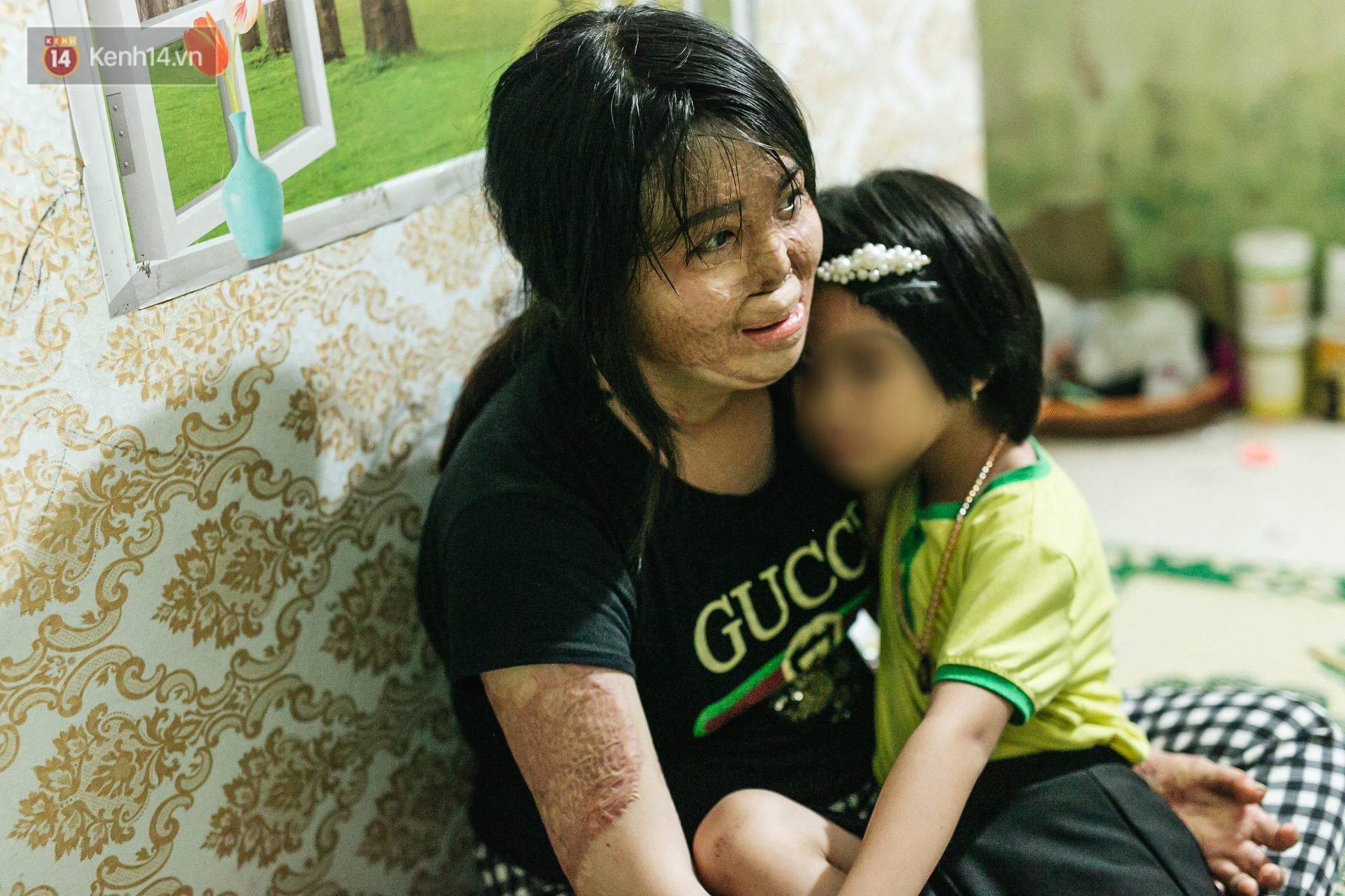 Cô gái trẻ bị chồng tưới xăng thiêu sống và lá thư muộn màng từ trại giam: Gần 3 năm anh chưa một lần dám viết thư cho em và hai con...-13